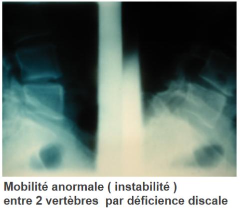 discopathie-degenerative-lombaire-a3