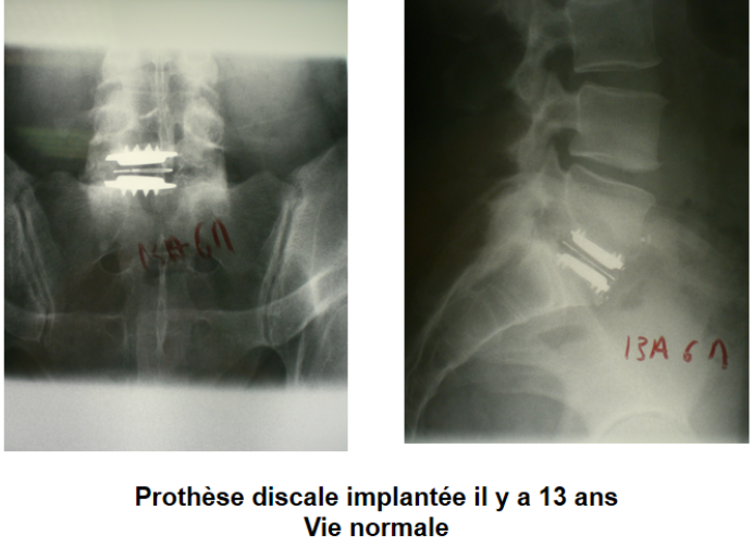 prothese-discale-c3