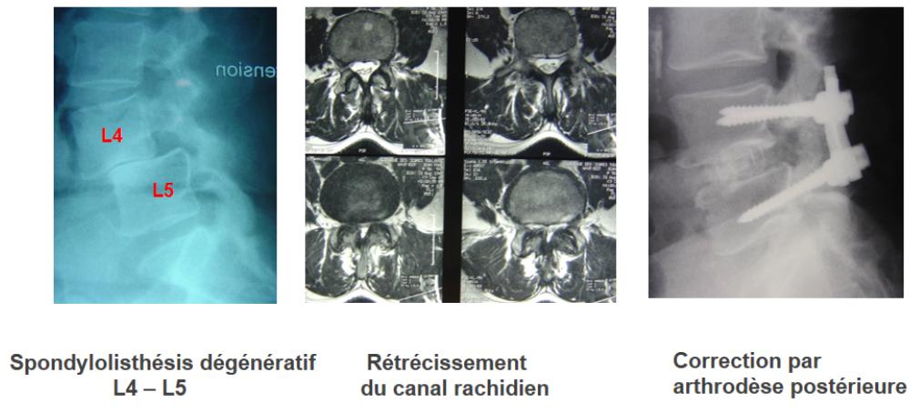 spondylolisthesis-degeneratif-4