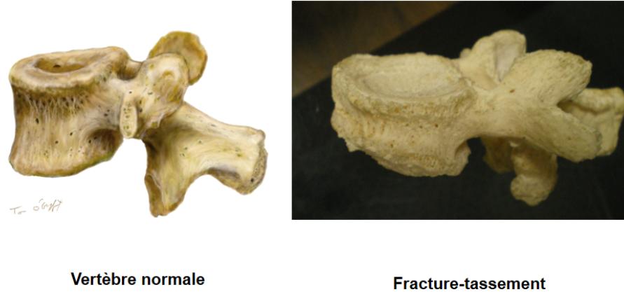 fracture-c1