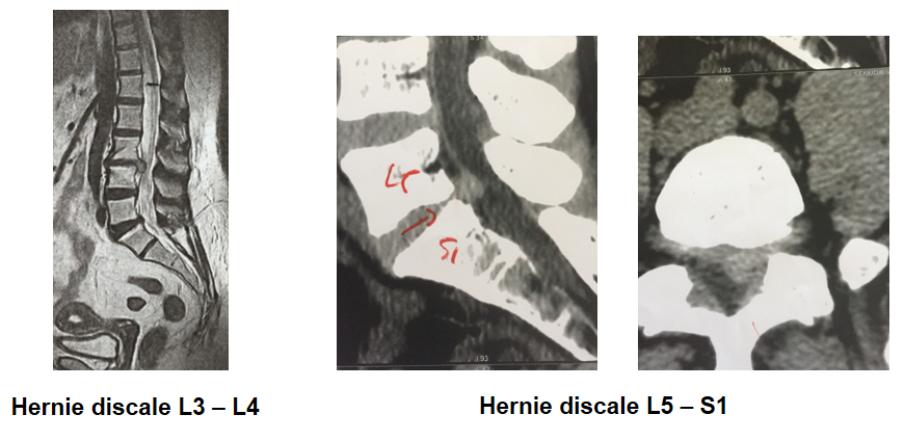 hernie-discale-c1