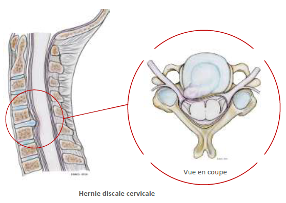 hernie-discale-cervicale-2