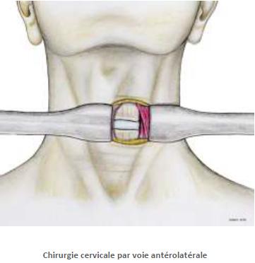 myelopathie-cervicarthrosique-2