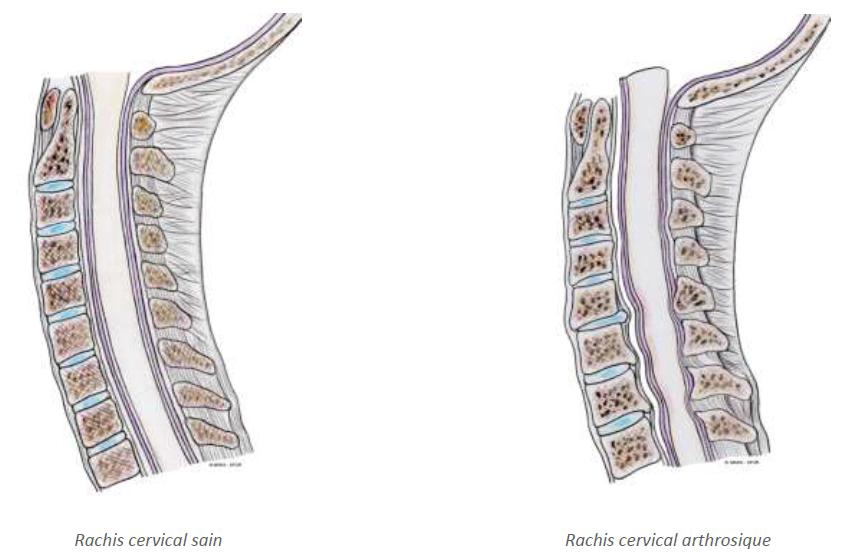 myelopathie-cervicarthrosique-c1