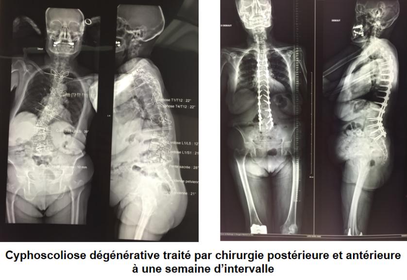 Scoliose et cyphose de l'adulte - Centre Toulousain du Rachis   fr
